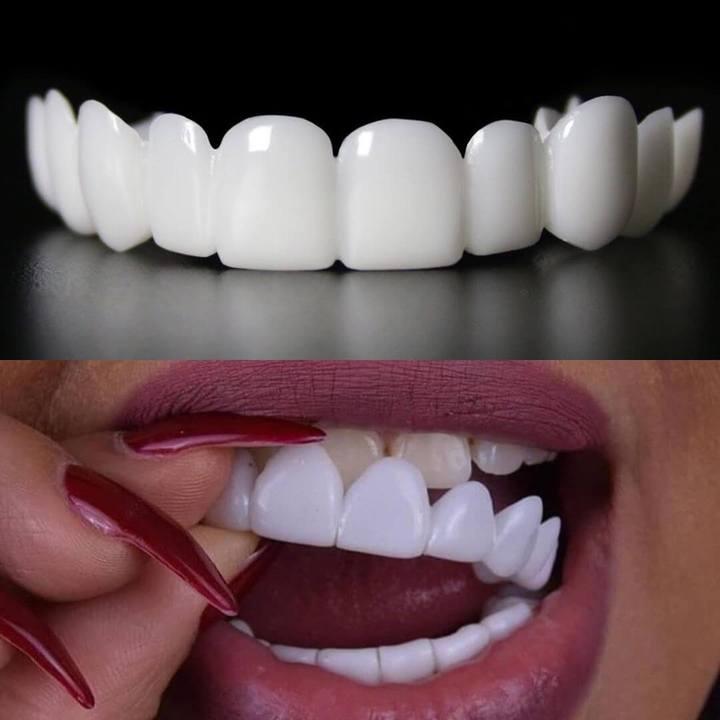 لمینت متحرک دندان دو فک