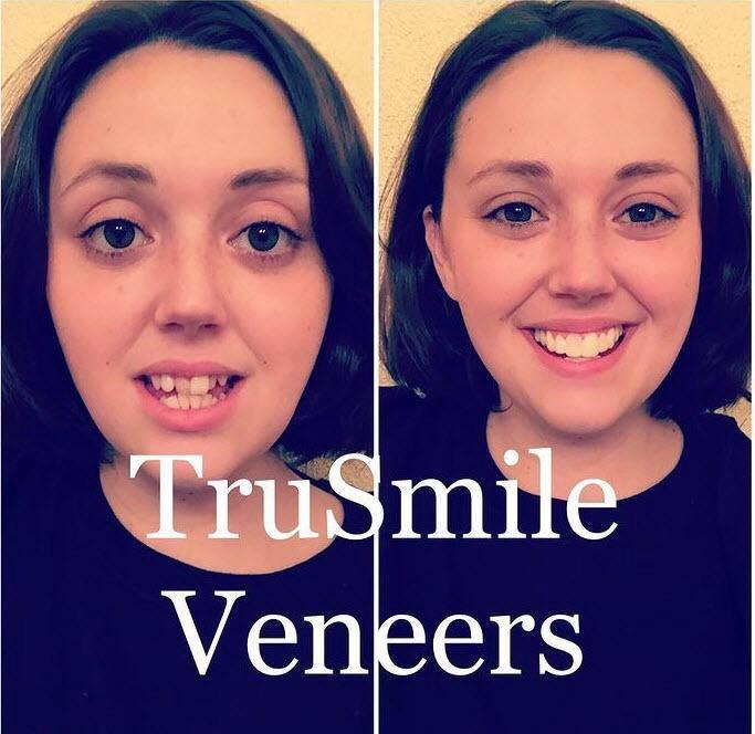 لمینت متحرک ترو اسمایل Movable True Smile Laminate